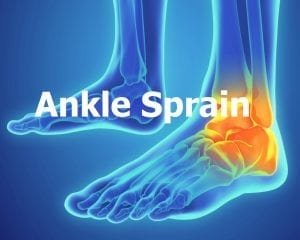 Ankle Sprains, ankle treatment 1