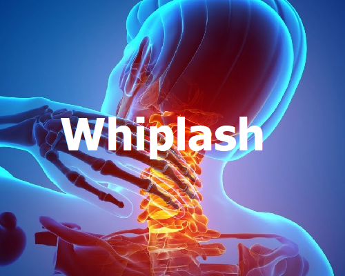 Whiplash, treatment, physio 1